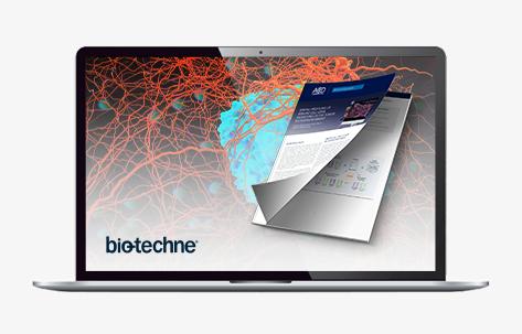 38777_TS_Bio-Techne-HiPlex_CTA-Banner_JP473x300-Laptop